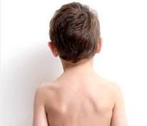 L'Escoliosi i el Creixament